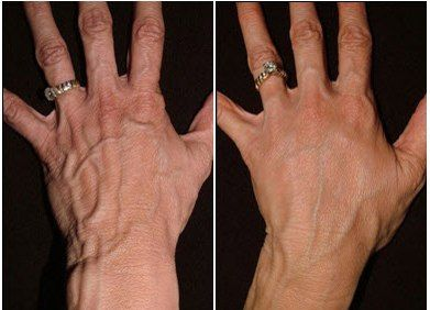 MIRACLE REJUVENATION OF SKIN OF HANDS